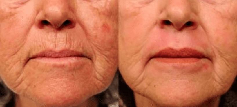 Альгинатные маски —новая формула быстрого омоложения лица: как пользоваться в домашних условиях, топ-5