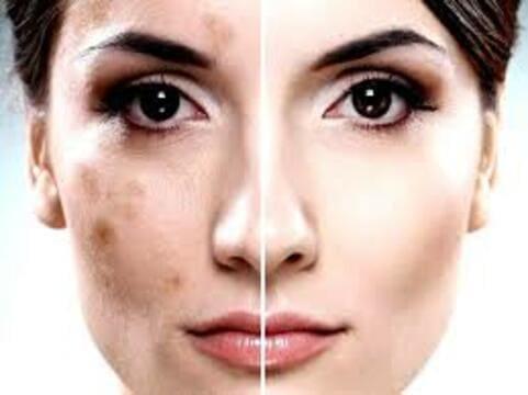 Пигментные пятна на лице ― как убрать быстро в домашних условиях, секреты из аптеки, 3 эффективных народных средства