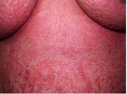 эксфолиативный дерматит на фоне аллергии