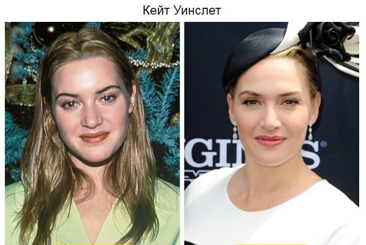 звезды Голливуда как стареют