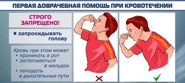 кровотечение из носа причины у взрослых из