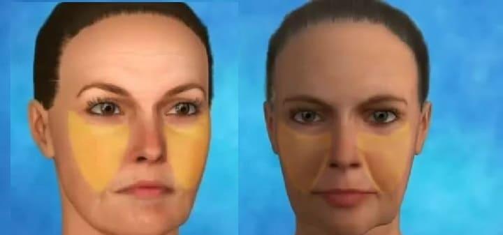 ритидэктомия кожи лица и шеи что это