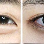 Убрать отеки под глазами за 15 минут, 3 эффективных способа в домашних условиях
