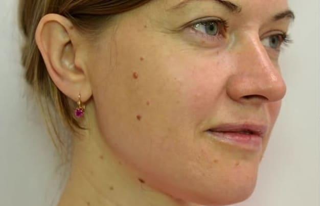 Удаление родинок лазером на лице: что нужно знать перед процедурой, эффект, как проходит удаление