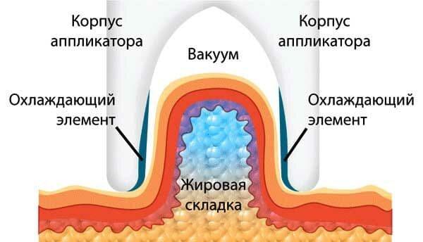 аппараты для криолиполиза