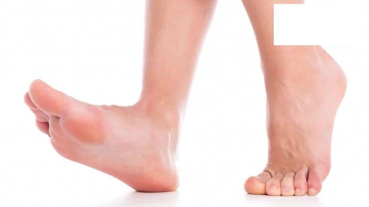 Косточка на ноге Как убрать