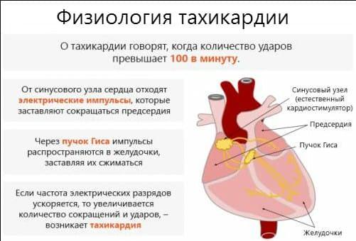 как снизить пульс при тахикардии