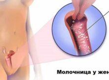 Что будет если не лечить молочницу у женщин