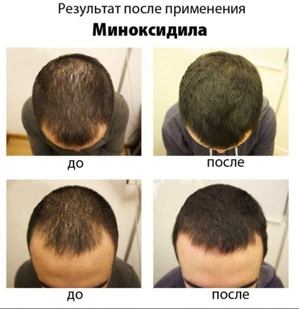 Что нельзя делать при выпадении волос